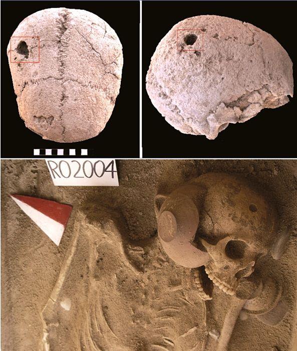 Part. dello scheletro e del cranio della ragazza di 19-21 anni con segni di perforazione chirurgica - Image by Soprintendenza Archeologica di Palermo