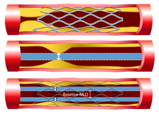Esempio di ostruzione vascolare corretta tramite inserimento di uno stent - Ph. Libertas Academica