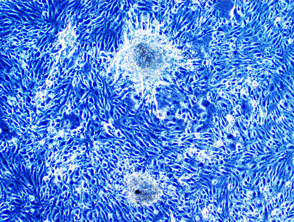 Crescita tridimensionale (gliomasfere) delle cellule staminali tumorali isolate dal glioblastoma umano - Ph. Columbia University, New York
