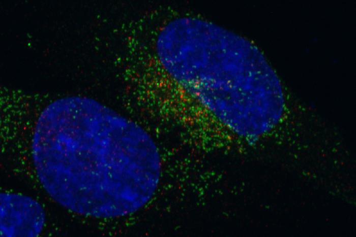 Cellula tumorale che presenta la fusione genica FGFR3-TACC3 |  Image source: Iavarone Lab, Columbia University Medical Center