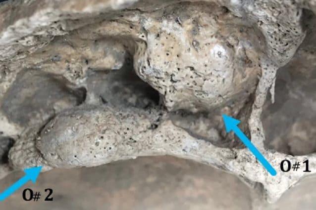 Tracce del tumore sul tessuto osseo del V-VI sec. d.C.
